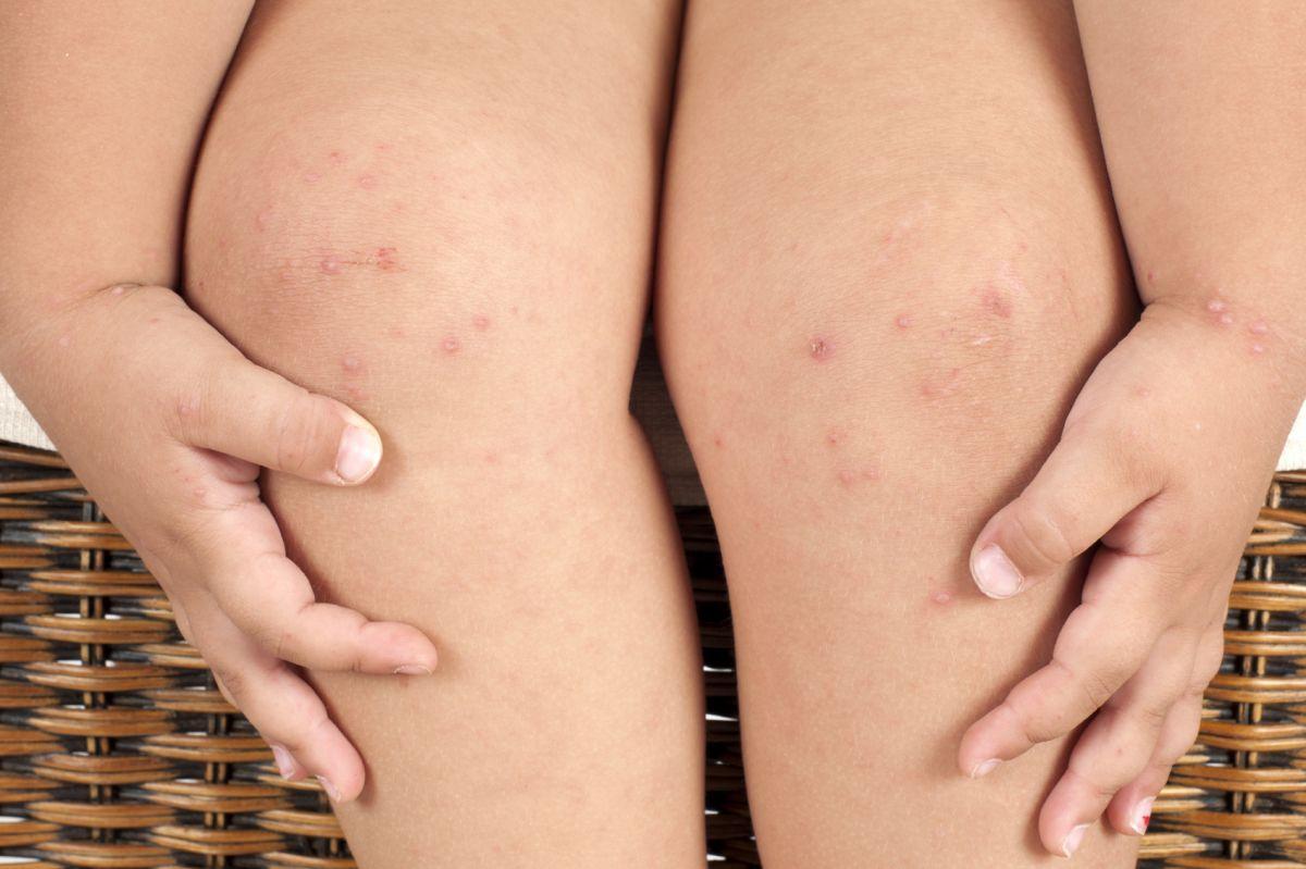 foliculita-simptome-tratament
