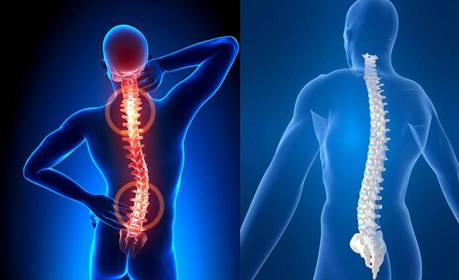 coloana vertebrala scolioza